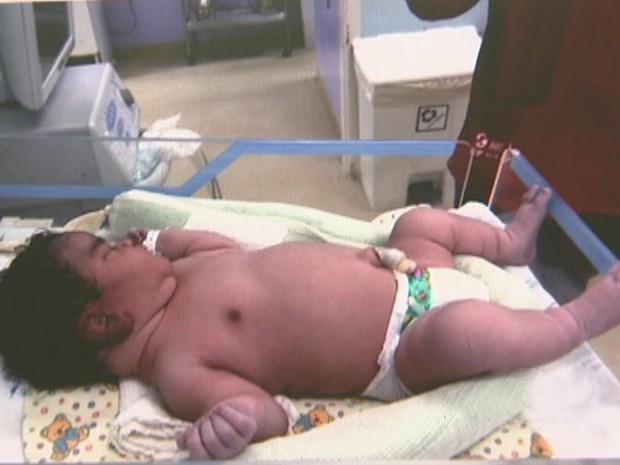 Mãe dá à luz bebê com 70 cm e 6 kg no Distrito Federal