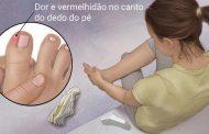 Unha encravada: Procedimento Podológico em Espiculaectomia, clinica de Cambé oferece o tratamento
